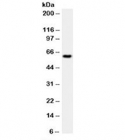Western blot testing of HeLa cell lysate with HSP60 antibody (clone LK1).