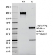 SDS-PAGE Analysis of Purified, BSA-Free Kappa Light Chain Antibody (clone L1C1). Confirmation of Integrity and Purity of the Antibody.