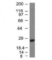Western blot testing of Raji lysate with Kappa Light Chain antibody (clone L1C1).