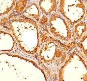 Thyroglobulin antibody 6E1 or TGB05 immunohistochemistry thyroid