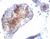IHC testing of testicular carcinoma with FOXP3 antibody.