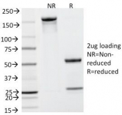 SDS-PAGE Analysis of Purified, BSA-Free PSA Antibody (KLK3/801). Confirmation of Integrity and Purity of the Antibody.