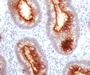IHC CEA antibody C66/1030 colon carcinoma
