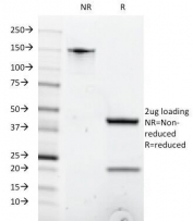 SDS-PAGE Analysis of Purified, BSA-Free Anti-CD8 Antibody (clone C8/1035). Confirmation of Integrity and Purity of the Antibody.