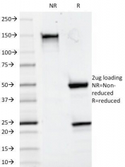 SDS-PAGE Analysis of Purified, BSA-Free CD20 Antibody (clone 93-1B3). Confirmation of Integrity and Purity of the Antibody.