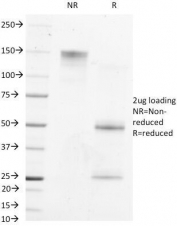 SDS-PAGE Analysis of Purified, BSA-Free AFP Antibody (clone MBS-12). Confirmation of Integrity and Purity of the Antibody.