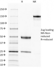 SDS-PAGE Analysis of Purified, BSA-Free EGFR Antibody (clone 31G7). Confirmation of Integrity and Purity of the Antibody.