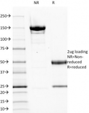SDS-PAGE analysis of purified, BSA-free EGFR antibody (clone GFR1195) as confirmation of integrity and purity.