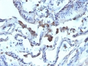 Formalin-fixed, paraffin-embedded human lung carcinoma stained with AMACR antibody.