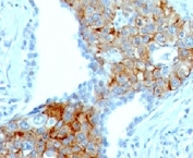 IHC: Formalin-fixed, paraffin-embedded human lung squamous cell carcinoma stained with TRIM29 antibody (TRIM29/1041).