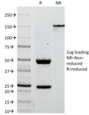 SDS-PAGE Analysis of Purified, BSA-Free Placental Alkaline Phosphatase Antibody (clone ALPP/238). Confirmation of Integrity and Purity of the Antibody.