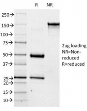 SDS-PAGE Analysis of Purified, BSA-Free ABO Antibody (clone 3-3A). Confirmation of Integrity and Purity of the Antibody.