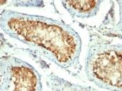 IHC testing of FFPE human testicular carcinoma with HSP60 antibody (clone GROEL/730).