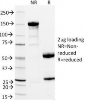SDS-PAGE Analysis of Purified, BSA-Free CD11a Antibody (clone DF1524). Confirmation of Integrity and Purity of the Antibody.
