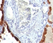 IHC: Formalin-fixed, paraffin-embedded human lung carcinoma stained with Cytokeratin 7 antibody (clone KRT7/760).