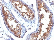 IHC: Formalin-fixed, paraffin-embedded human testicular carcinoma stained with CD99 antibody (HO36-1.1).