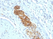 IHC: Formalin-fixed, paraffin-embedded human colon stained with NCAM antibody (NCAM1/784)