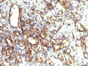 IHC: Formalin-fixed, paraffin-embedded human angiosarcoma stained with Podocalyxin antibody (2A4).