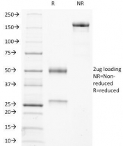 SDS-PAGE Analysis of Purified, BSA-Free TRAcP Antibody (ACP5/1070). Confirmation of Integrity and Purity of the Antibody.