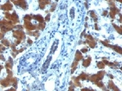 IHC: Formalin-fixed, paraffin-embedded human hepatocellular carcinoma stained with RBP1 (RBP/872)