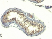 IHC: Formalin-fixed, paraffin-embedded human testicular carcinoma stained with TGFa antibody (TG86)