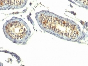 IHC: Formalin-fixed, paraffin-embedded human testicular carcinoma stained with TGF-alpha antibody (P/T1)