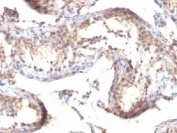 IHC testing of formalin-fixed, paraffin-embedded human testicular carcinoma stained with TGFa antibody (clone TGFA/1119).