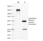 SDS-PAGE Analysis of Purified, BSA-Free TLR2 Antibody (clone TLR2/221). Confirmation of Integrity and Purity of the Antibody.