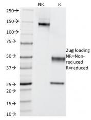 SDS-PAGE Analysis of Purified, BSA-Free C4d Antibody (clone C4D203). Confirmation of Integrity and Purity of the Antibody.