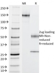 SDS-PAGE Analysis of Purified, BSA-Free C4d Antibody (clone C4D205). Confirmation of Integrity and Purity of the Antibody.