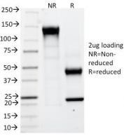 SDS-PAGE Analysis of Purified, BSA-Free CAIX Antibody (clone CA9/781). Confirmation of Integrity and Purity of the Antibody.