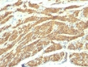 IHC: Formalin-fixed, paraffin-embedded human uterus stained with Caldesmon antibody (SPM168).