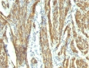 IHC: Formalin-fixed, paraffin-embedded human uterus stained with CAD antibody (CALD1/820 + h-CALD).