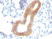 IHC: Formalin-fixed, paraffin-embedded human melanoma stained with CD86 antibody (SPM600).
