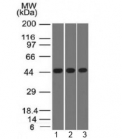 Western blot of human 1) K562, 2) HEK293 and 3) A549 cell lysates using Napsin-A antibody (clone NAPSA/1238). Predicted molecular weight ~45 kDa.