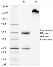 SDS-PAGE Analysis of Purified, BSA-Free LAMP-3 Antibody (clone LAMP3/968). Confirmation of Integrity and Purity of the Antibody.