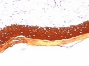 IHC: Formalin paraffin human skin stained with Acidic Cytokeratin antibody (KRTL/1077).