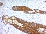IHC: Formalin paraffin human skin stained with Basic Cytokeratin antibody (KRTH/1076).