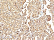 IHC: Formalin-fixed, paraffin-embedded human adrenal gland stained with Chromogranin A antibody (LK2H10 + PHE5)