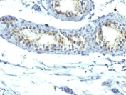IHC: Formalin-fixed, paraffin-embedded human testicular carcinoma stained with Prolactin Receptor antibody (B6.2 + PRLR742).