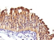 IHC testing of human bladder carcinoma with Cytokeratin 10 antibody (clone DE-K10).