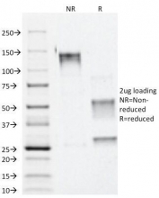 SDS-PAGE Analysis of Purified, BSA-Free Alpha Catenin Antibody (clone 1G5). Confirmation of Integrity and Purity of the Antibody.