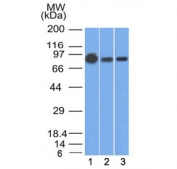 Western blot testing of human 1) A431, 2) A549 and 3) MCF7 cell lysate with Beta Catenin antibody (clone 9F2). Predicted molecular weight ~85 kDa, but routinely observed at 90-95 kDa.