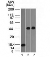 Western blot testing of 1) a partial recombinant protein, 2) human Jurkat and 3) human A549 lysate with Alpha 1 Antitrypsin antibody (clone AAT/1378). Expected molecular weight: ~47 kDa (unmodified), 52 kDa (glycosylated).