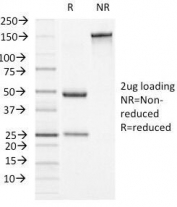 SDS-PAGE Analysis of Purified, BSA-Free Alpha-1-Antichymotrypsin Antibody (clone AACT/1451). Confirmation of Integrity and Purity of the Antibody.