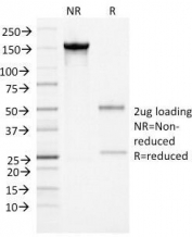 SDS-PAGE Analysis of Purified, BSA-Free Alpha-1-Antichymotrypsin Antibody (clone AACT/1452). Confirmation of Integrity and Purity of the Antibody.