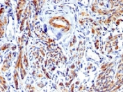 IHC testing of FFPE human uterus with recombinant Caldesmon antibody. Required HIER: boil tissue sections in 1mM EDTA, pH 7.5-8.5, for 10-20 min.