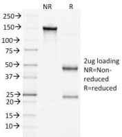 SDS-PAGE Analysis of Purified, BSA-Free Beta Catenin Antibody (clone 15B8). Confirmation of Integrity and Purity of the Antibody.