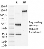 SDS-PAGE Analysis of Purified, BSA-Free b-Catenin Antibody (clone 6F9). Confirmation of Integrity and Purity of the Antibody.