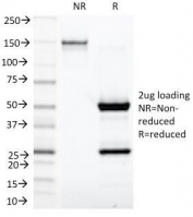 SDS-PAGE Analysis of Purified, BSA-Free Kappa Light Chain Antibody (clone KLC1278). Confirmation of Integrity and Purity of the Antibody.